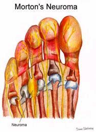 symptomen beknelde zenuw been